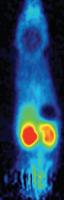 Molecular Imaging 6